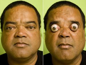 Akių išpūtimo rekordas (vyras)