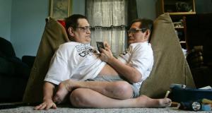 Ilgiausiai gyvenantys sujungti dvyniai